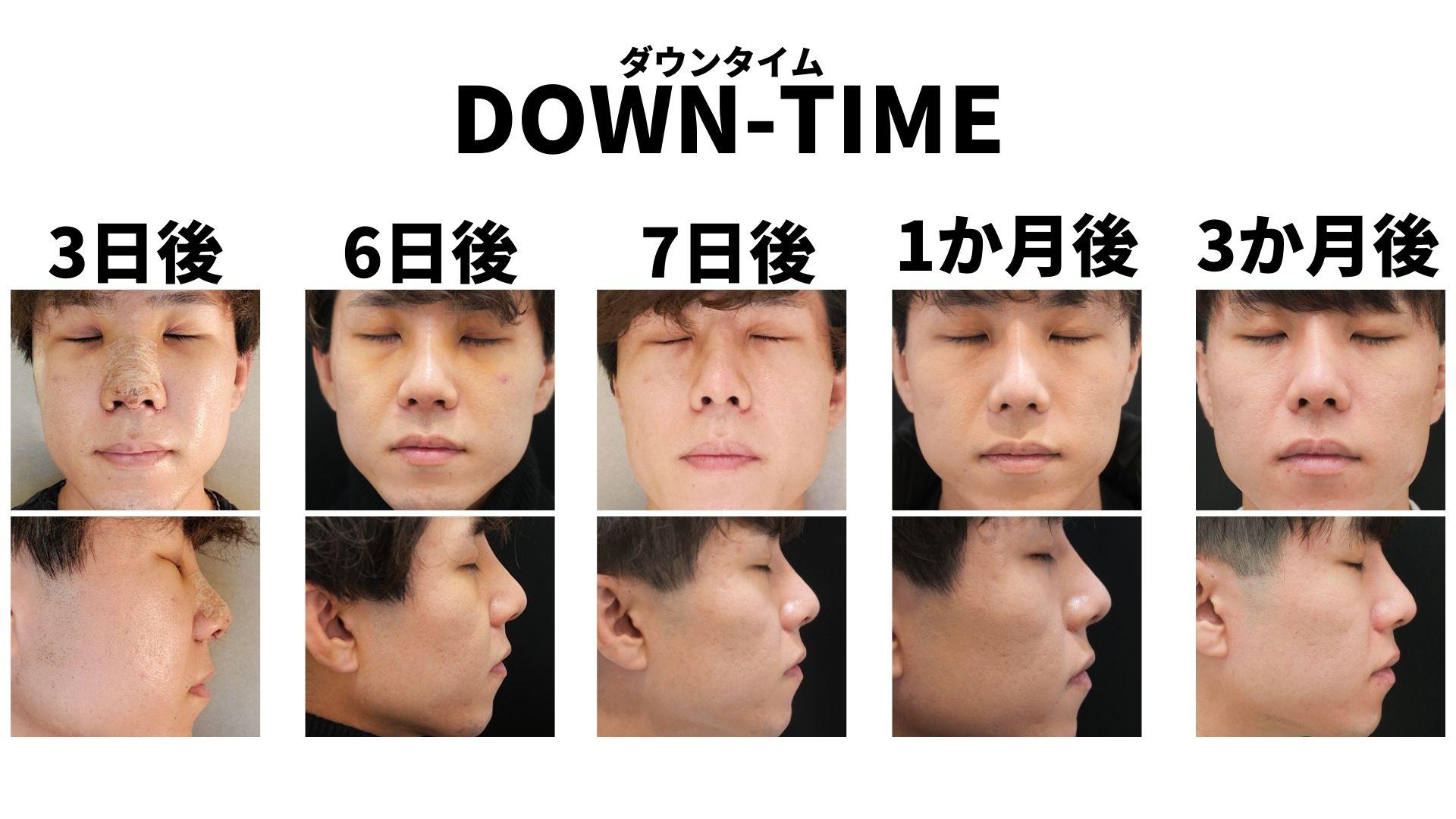 イセアクリニック鼻整形ダウンタイム