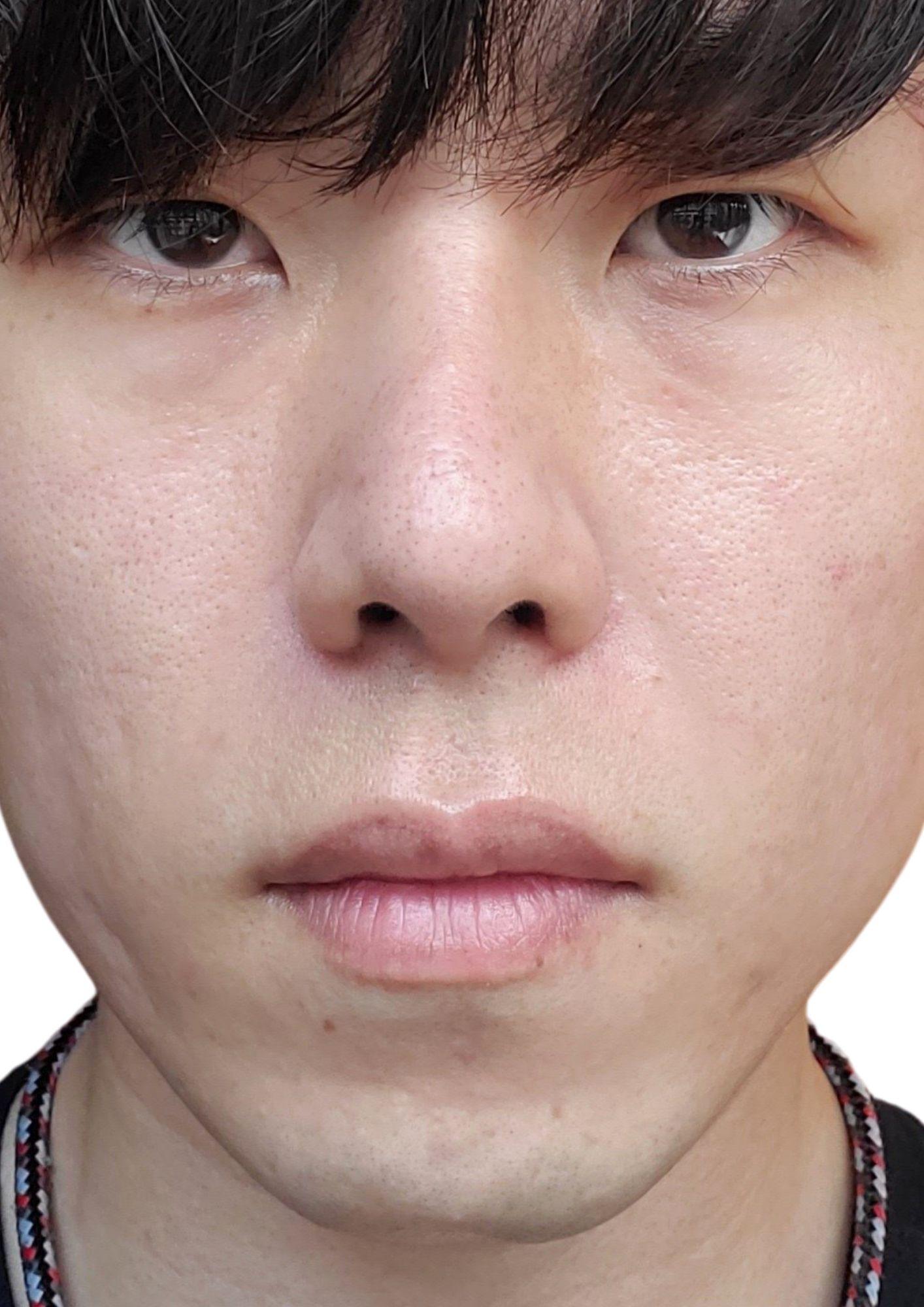 鼻整形アフター
