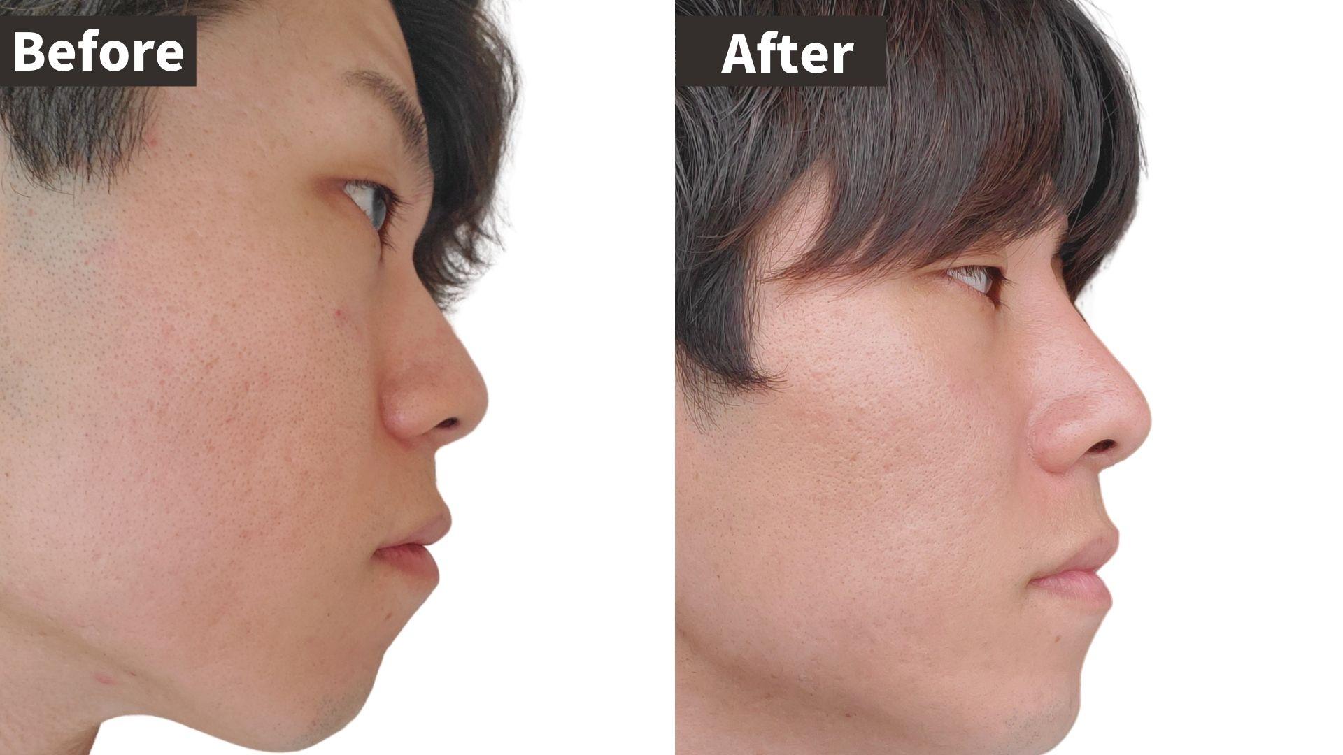 イセアクリニック鼻整形